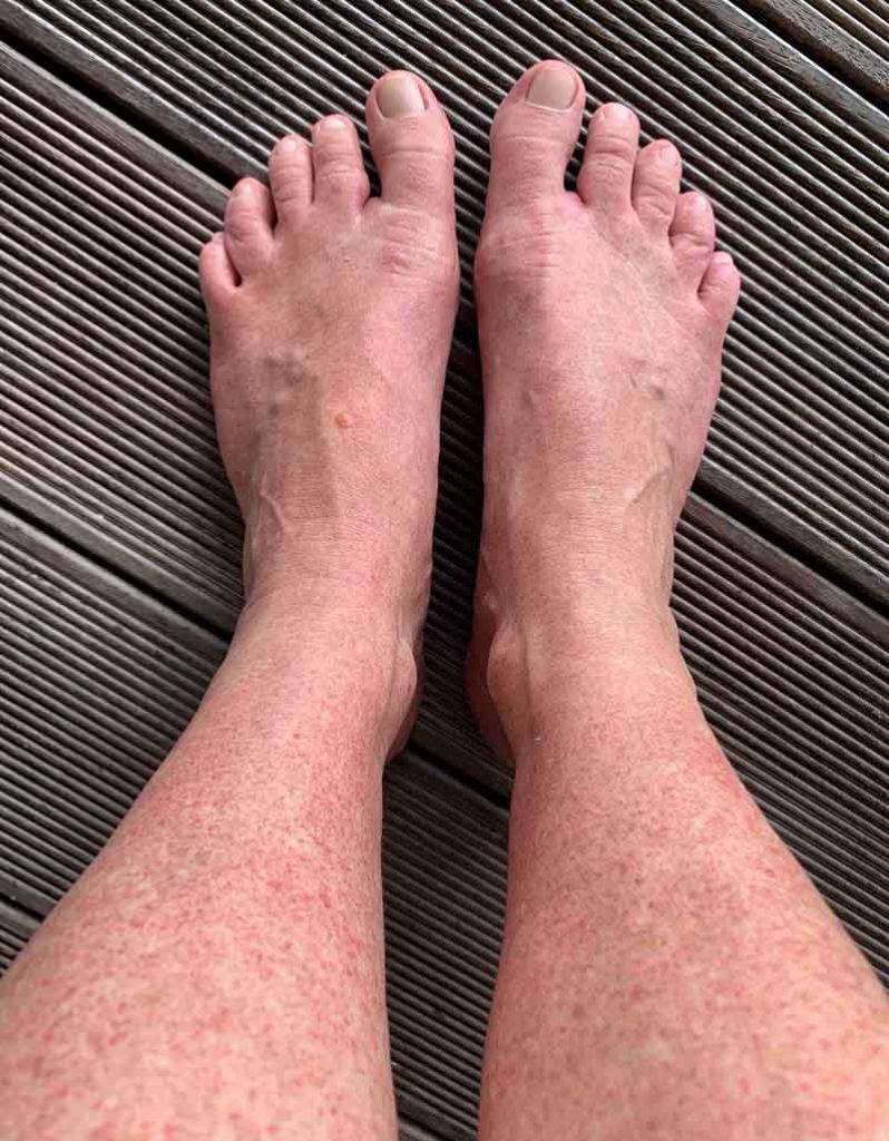 IslandAwe Dengue fever rash